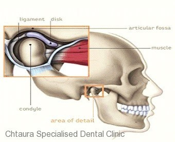 Occlusion and TMJ Disorders